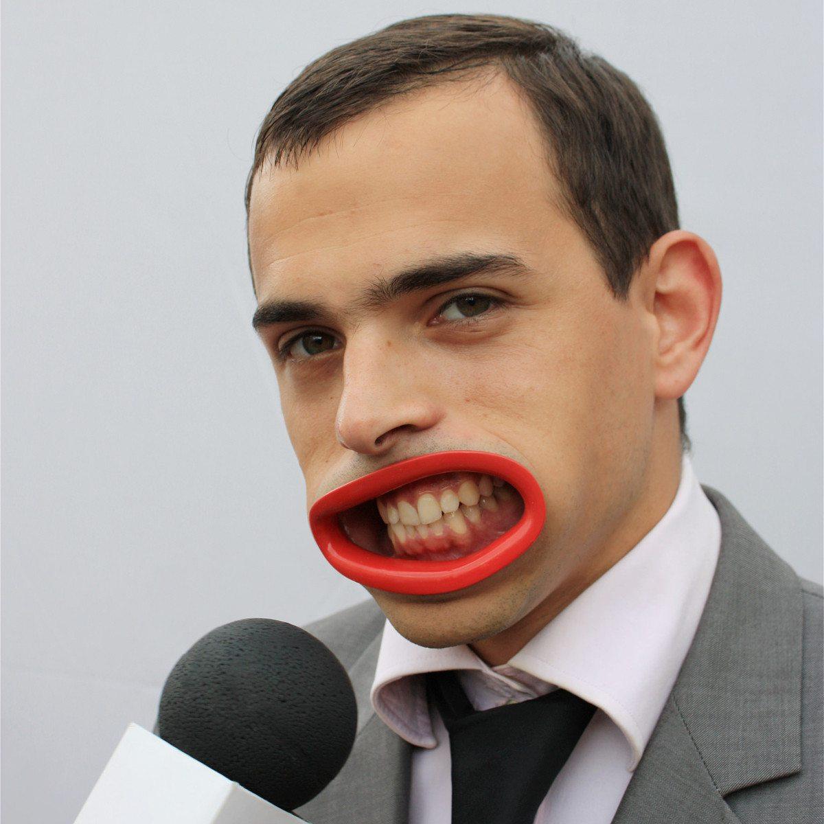 Hyperlip - kunstige læber